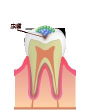 なぜむし歯になるのか?
