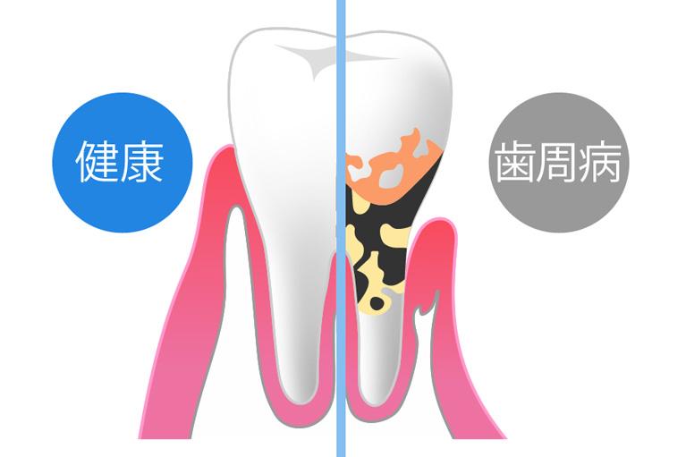 歯周病は、歯を失う最大の原因です