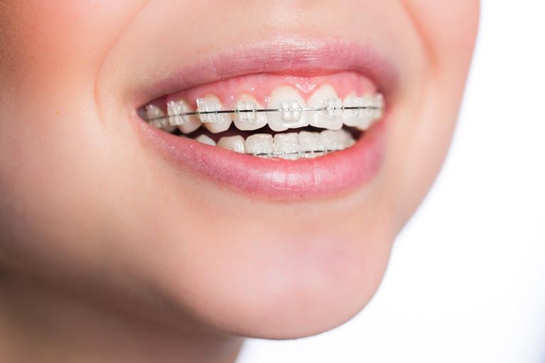 矯正歯科とは?